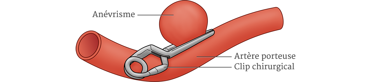 Anevrisme Intracranien Clip W1275