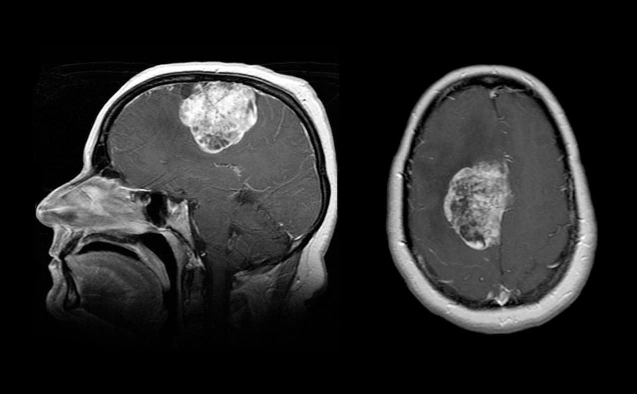 Meningiome Neurochirurgie