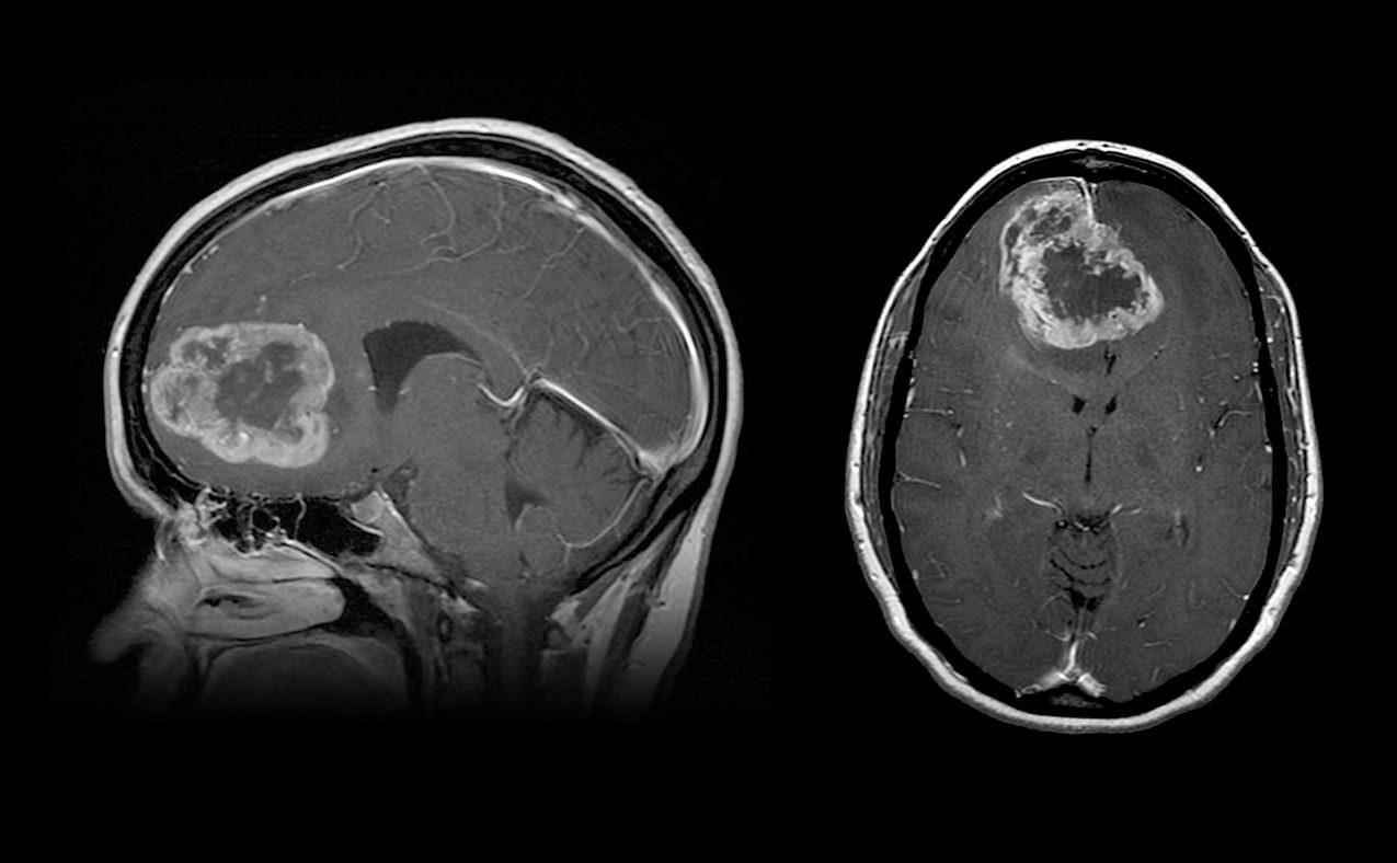 Glioblastome Neurochirurgie