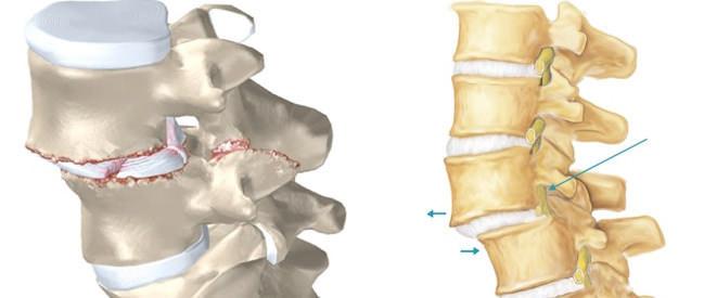 Spondylolisthesis Neurochirurgie